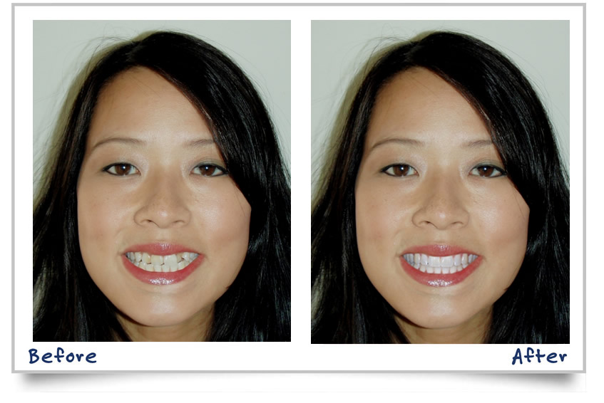 Cosmetic veneers near me