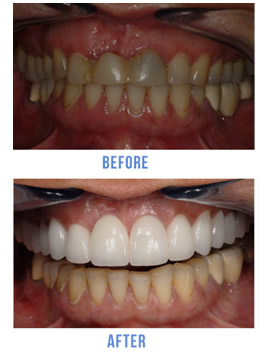 NYC Porcelain Veneers